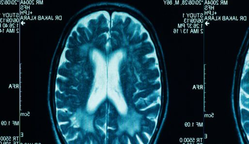 Mo�nosti mozku � zbran�